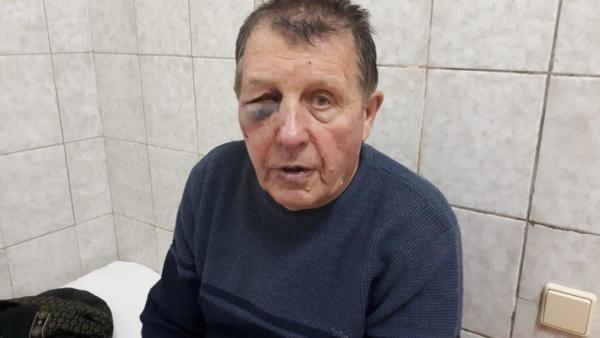 В Киеве полицейские начали служебное расследование из-за избиения авиаконструктора